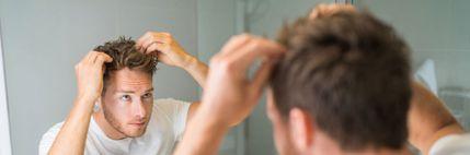 Απώλεια μαλλιών σε νεαρή ηλικία. Η μεταμόσχευση είναι η απάντηση;